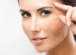 Common Skin Problem